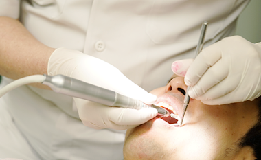 30年の実績に基づく虫歯・歯周病予防